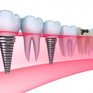 6th Ave Periodontics and Implant Dentistry San Diego