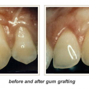 6th Avenue Periodontics and Implant Dentistry Gum Grafting