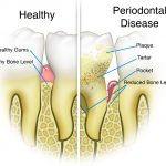 Periodontal Disease | 6th Ave Periodontics