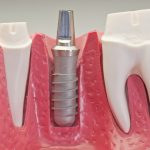 The 3 Main Parts of a Dental Implant | 6th Ave Perio