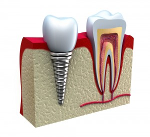 How to Take Care of Your Dental Implants | 6th Ave Perio