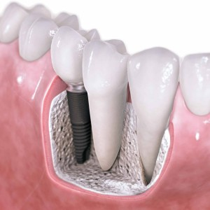 The Four Types of Dental Implants | 6th Ave Periodontics
