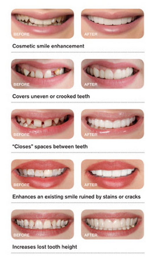 Snap-on-Smile Before and After