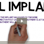 What are Dental Implants? (Videoscribe)
