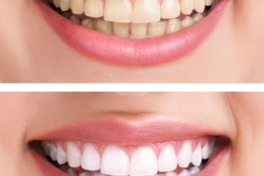 Seniors Guide to Dentistry: Tooth Discoloration