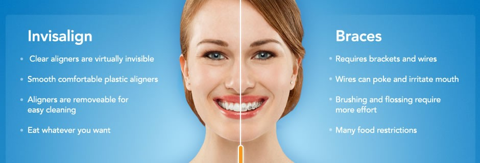 San Diego Invisalign | 6th Ave Periodontics and Implant Dentistry