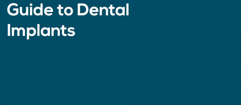 Guide to San Diego Dental Implants | 6th Ave Periodontics and Implant Dentistry