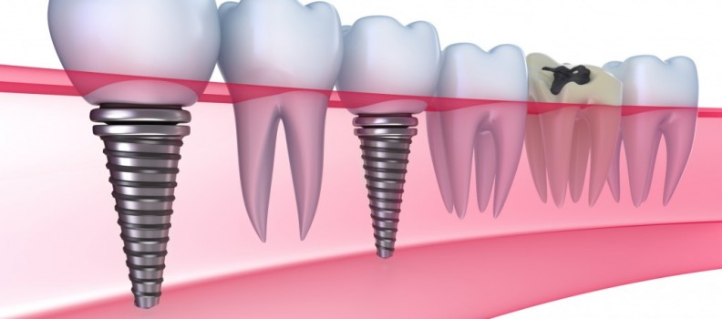 Guide to Dental Implants in San Diego