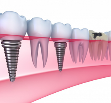The Top 5 Benefits of Dental Implants