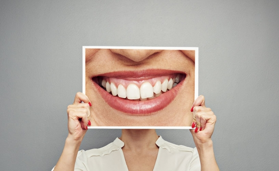 The Benefits of Laser Dental Cleaning