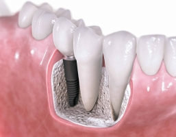 The Four Types of Dental Implants