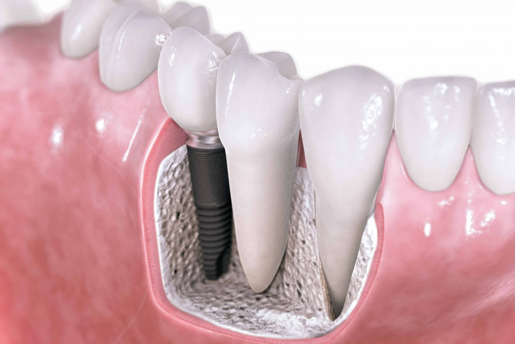 What is the Difference Between Dental Implants and a Bridge?