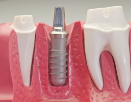 The 3 Main Parts of a Dental Implant