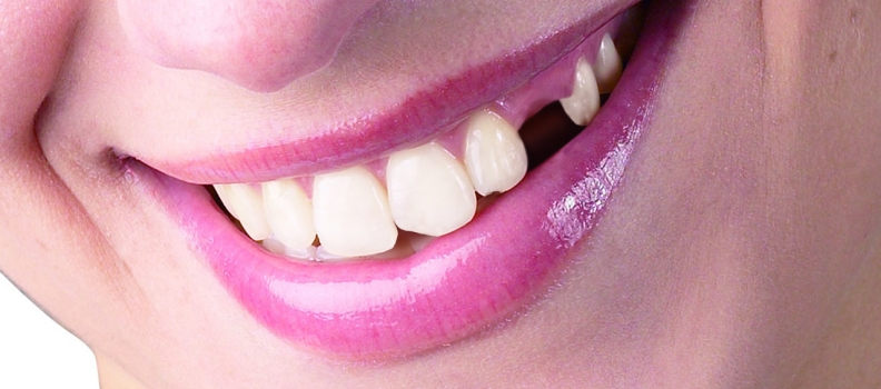 What If I Don't Replace My Missing Tooth?