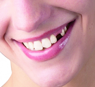 How Missing Teeth Can Predict Cardiovascular Problems