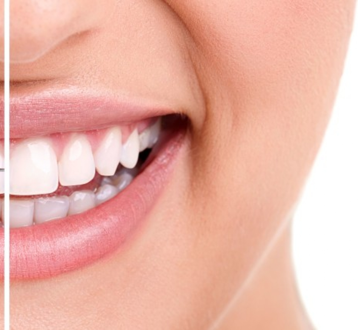 What is Invisalign Made Of?